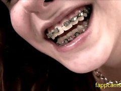 136-first time for young freckled girl with braces